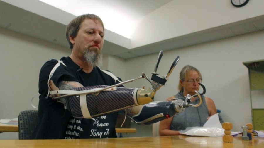Greg Manteufel tries out a new prosthetic arm