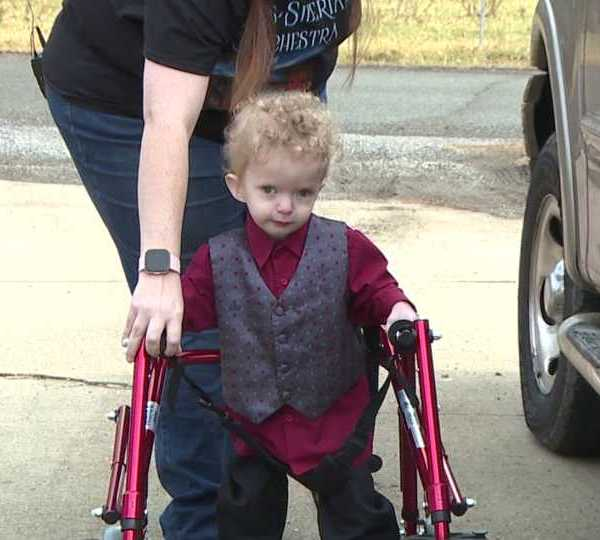 Girard toddler lives with Dandy Walker Syndrome