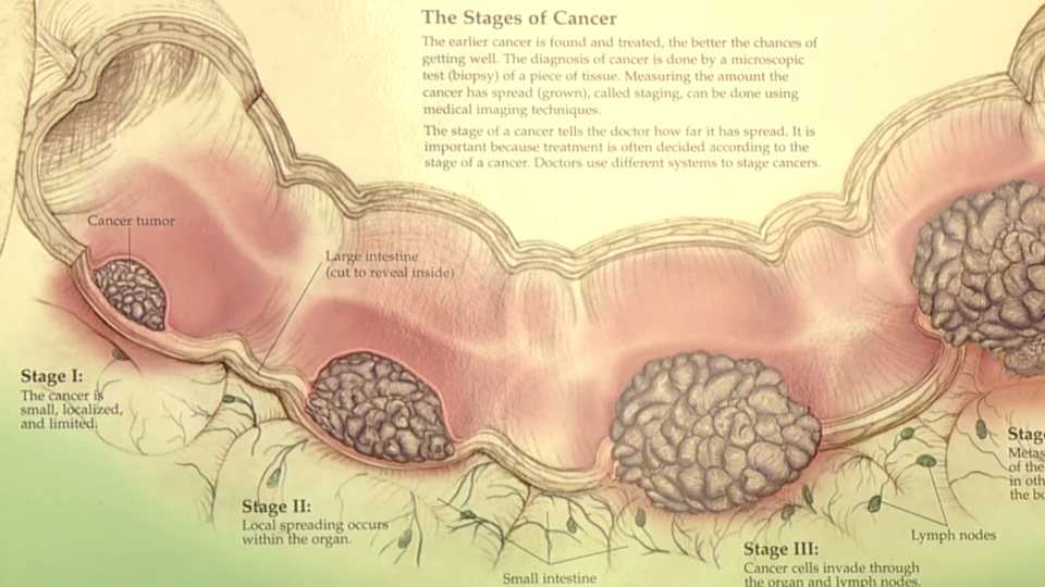 Symptoms Of Colorectal Cancer And The Importance Of Catching It Early Wkbn Com