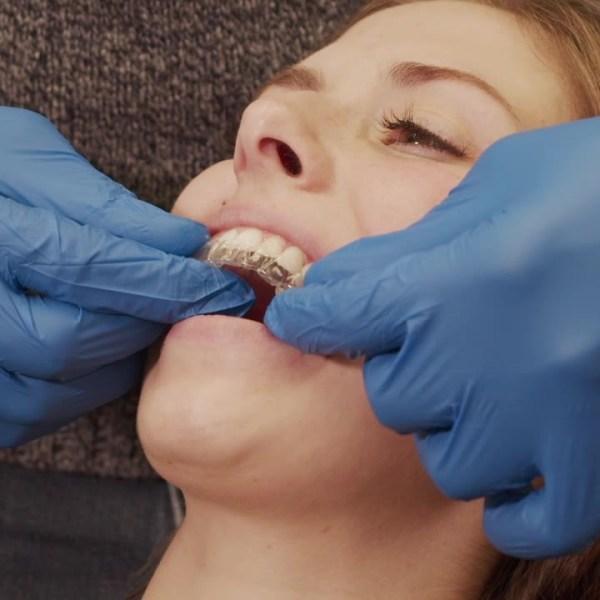 Precision Orthodontics Adult Patients