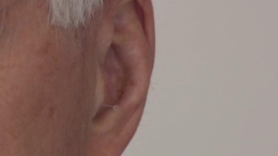 Ear, hearing, deaf