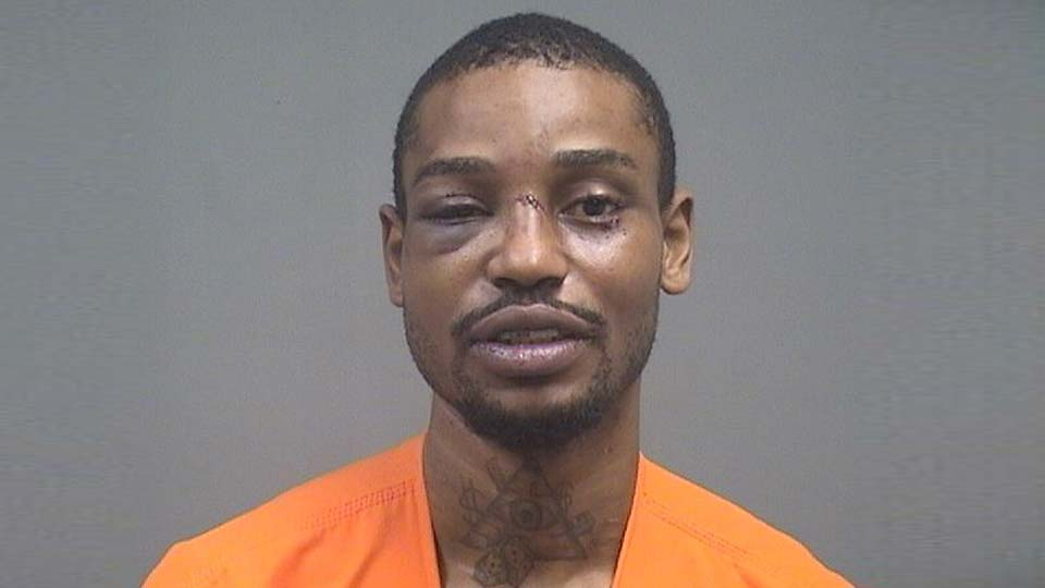 Sammy Anderson is charged with domestic violence and felonious assault, bit off girlfriends ear
